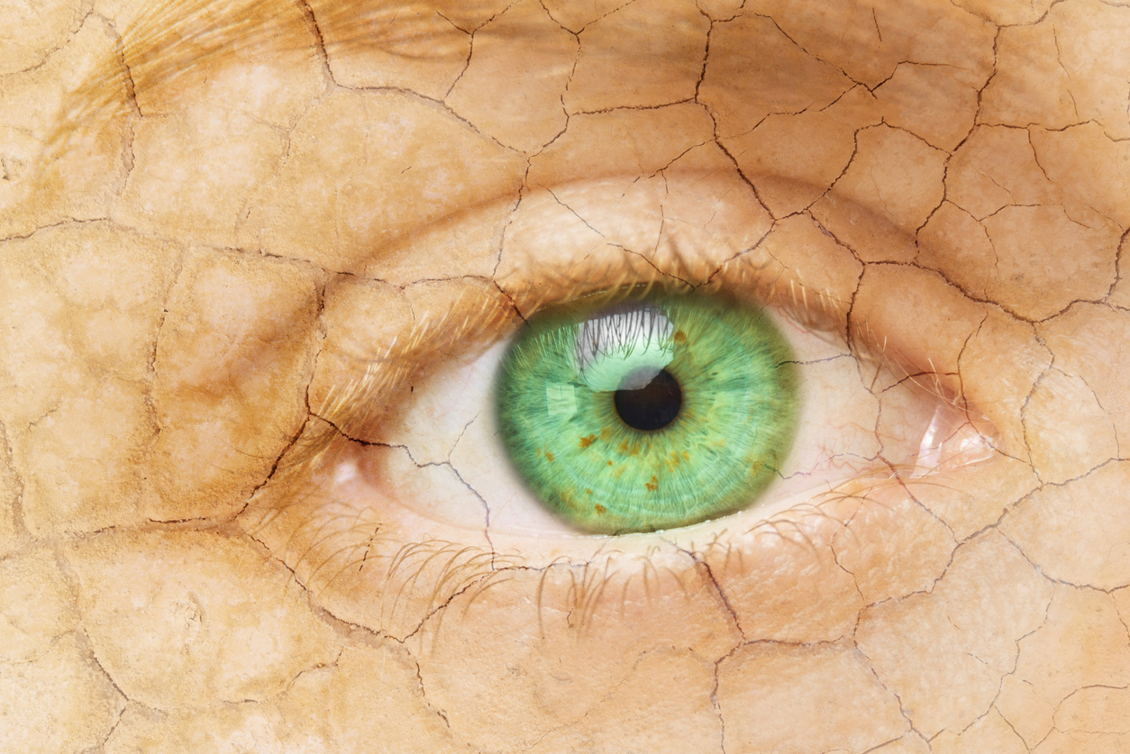 Cracked Skin. Closeup of a female eye with cracked skin. Aging process or pain and loneliness conceptual image.