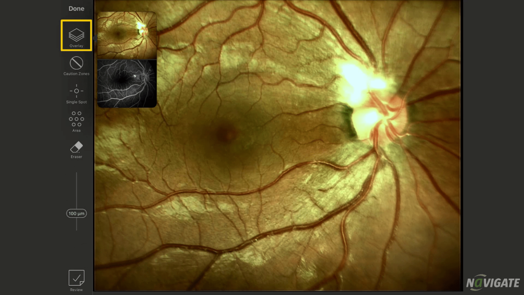 Learn Retinal Laser Online with NAVIGATE